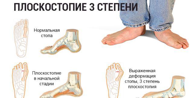 паразиты в крови человека симптомы лечение фото