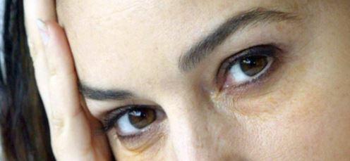 тёмные круги под глазами