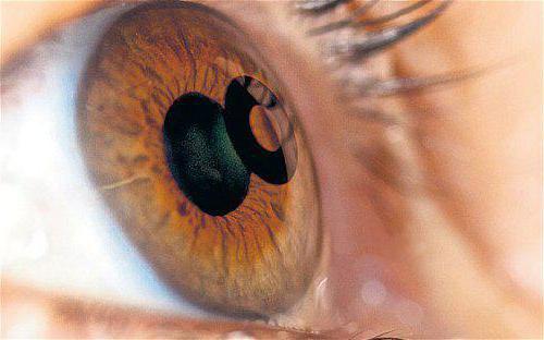 Какой хрусталик лучше при катаракте