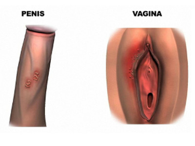 kak-lechit-genitalnyy-gerpes