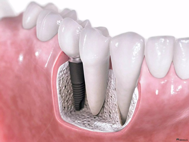 kak-implantiruyut-zuby