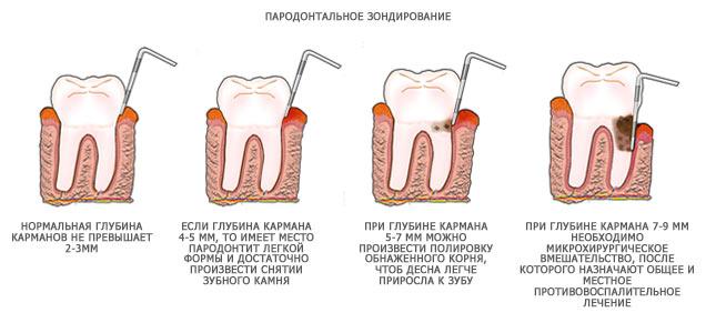 kak-vylechit-parodontit