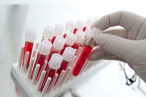 Какие анализы сдавать на венерологические заболевания
