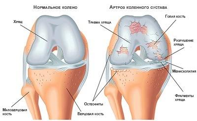 kak-lechit-artroz-kolennogo-sustava