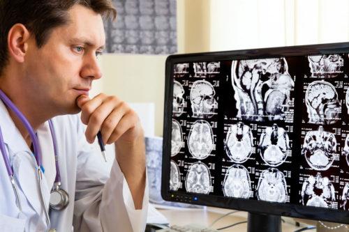 Как лечить аневризму головного мозг
