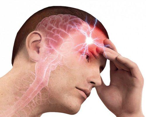 Как лечить аневризму сосудов головного мозга
