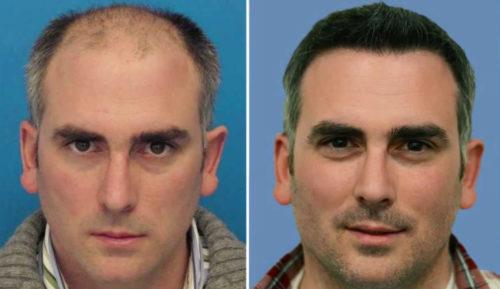 До-и-после-операции-по-пересадке-волос