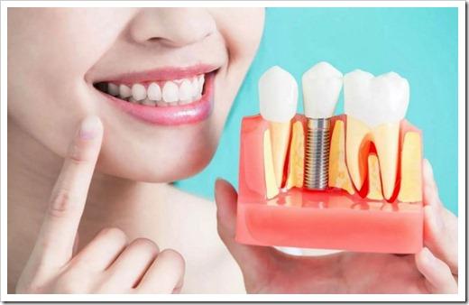 Различные виды имплантации зубов