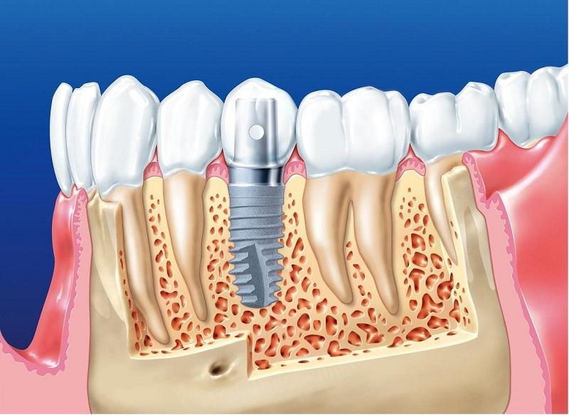 kak-delayut-implantaciyu-zubov
