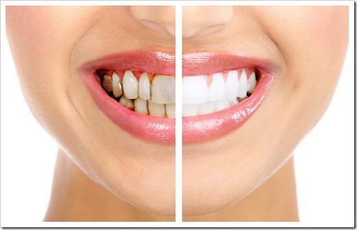 Отбеливание зубов при помощи лазера