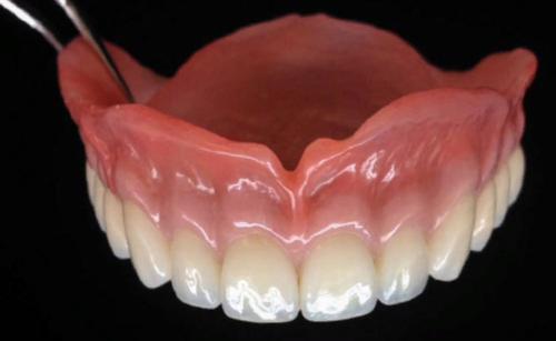 Из каких полимеров изготавливают основу съемных зубных протезов