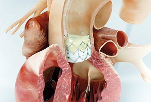 Операция на сердце TAVI - что это