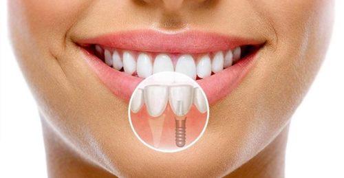 Виды имплантации зубов: плюсы и минусы