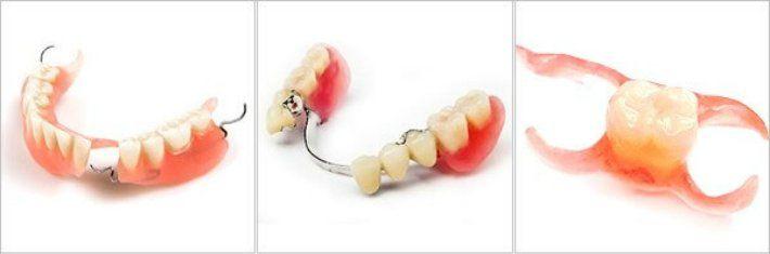 iz-kakih-polimerov-izgotavlivayut-osnovu-semnyh-zubnyh-protezov