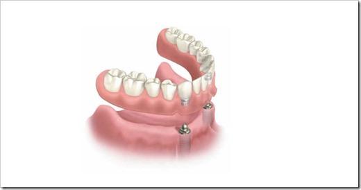 Лечебные опции для перекрывающих протезов нижней челюсти с опорой на имплантаты