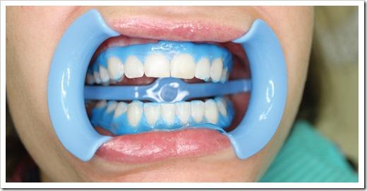 Повышение чувствительности зубов неизбежно