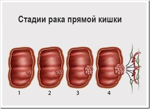 Стадии и лечение рака кишечника