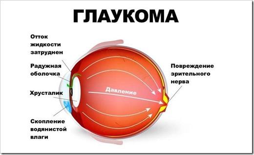 Самые распространенные глазные заболевания